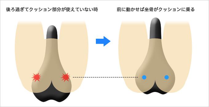 サドルの前後位置を動かすことでお尻の痛みが解消されることを示したイラスト