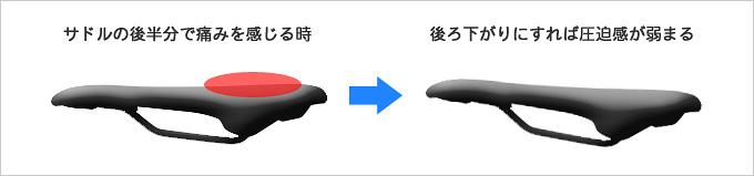 サドルの上下の向き・角度を調節することでお尻の痛みが解消されることを示したイラスト